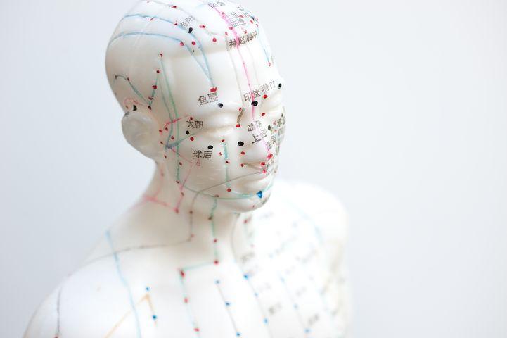 Akupunktur_aiguille