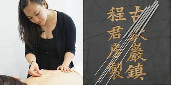 Akupunktur_images_Is kopiera
